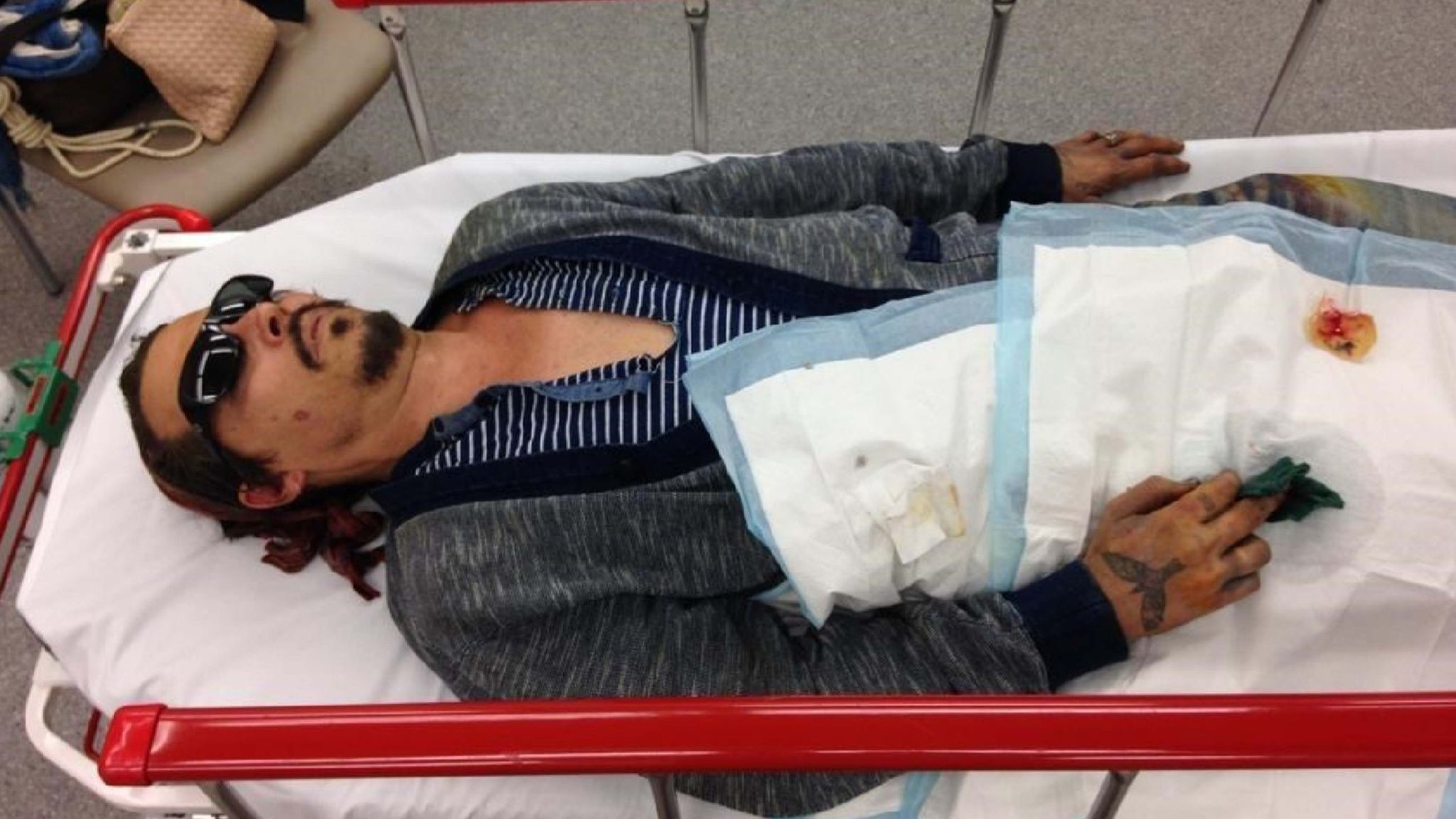 A picture from Johnny Depp's lawyers show him in hospital after Amber Heard allegedly severed his finger with a vodka bottle.