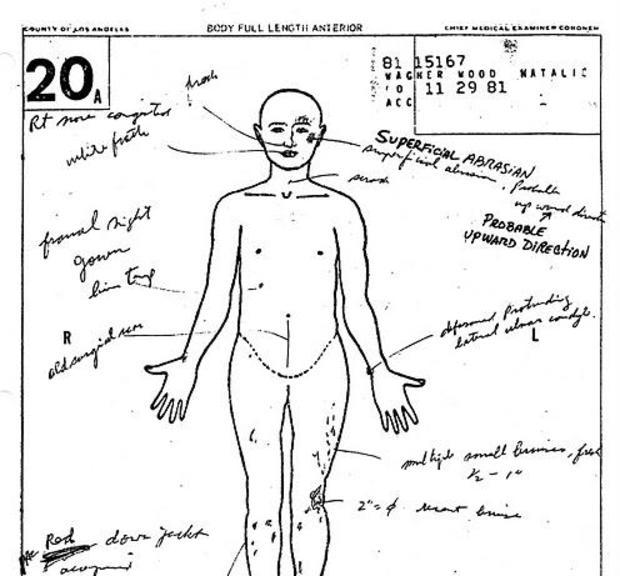 Natalie Wood autopsy report