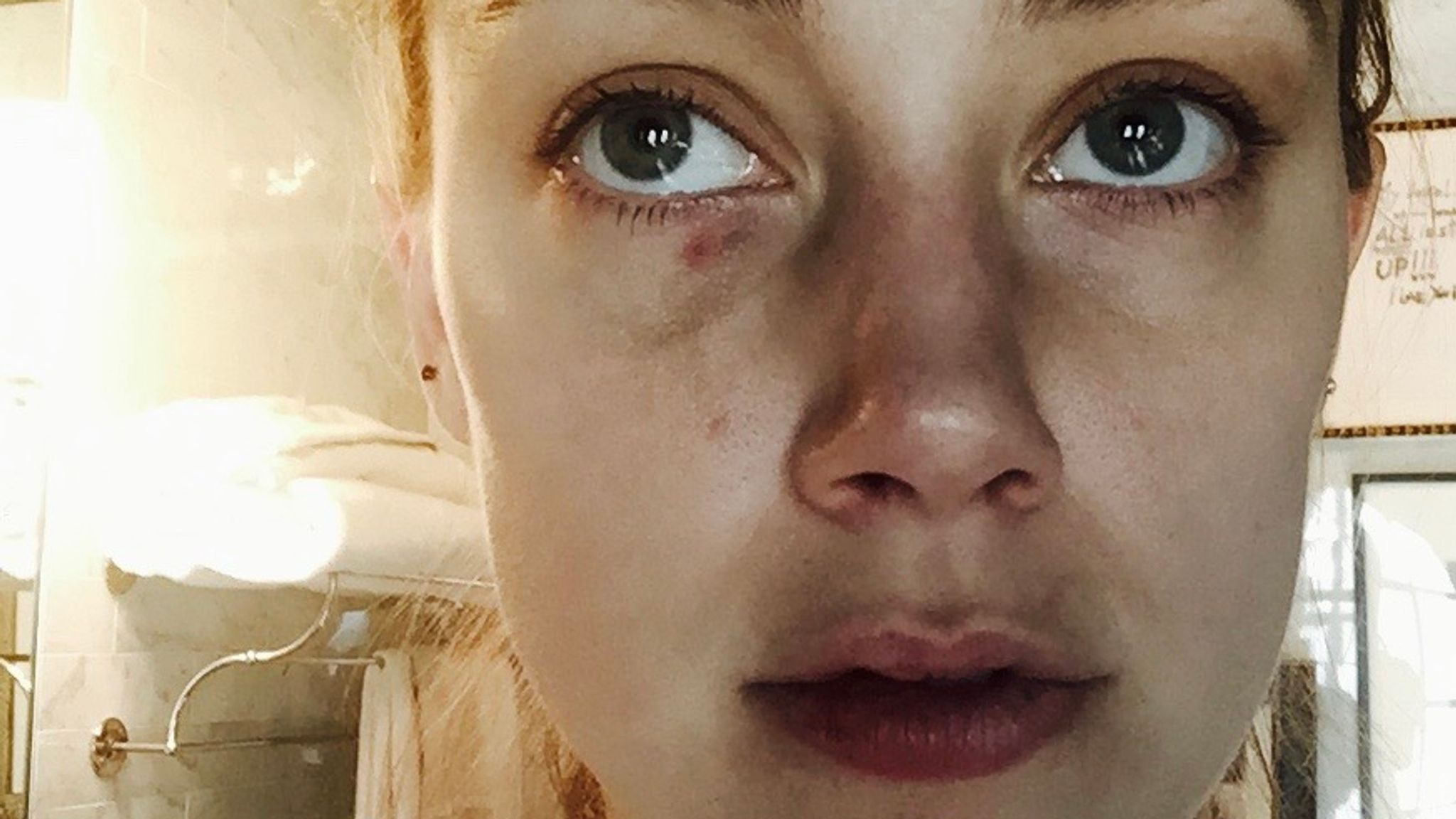 Amber Heard's alleged injuries from the 'headbutt' incident in December 2015
